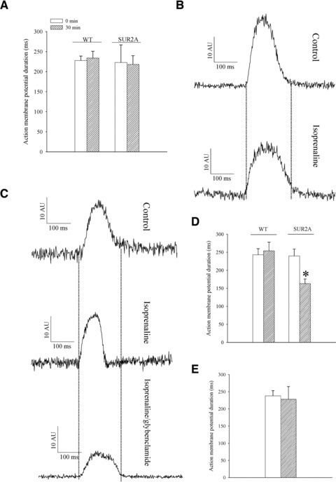 Action membrane potential duration in wild-type and SUR2A cardiomyocytes. (A) Duration of action membrane potential in cardiomyocytes from wild-type (WT) and SUR2A (SUR2A) at depicted time-points. Original action membrane potentials from wild-type (B) and SUR2A cardiomyocyte (C) in the absence (control) and presence of isoprenaline (500 nM) and isoprenaline (500 nM)/glybenclamide (10 μM). (D–E) Graphs corresponding to (B) and (C). Each bar represents mean ± S.E. of the mean (n = 6–10). *P < 0.05.