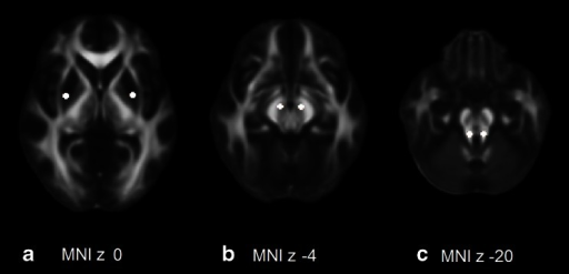 Regions of interest in the bilateral putamen (a), midbrain (b), and superior cerebellar peduncles (c). Mean MD and FA of these ROIs were calculated