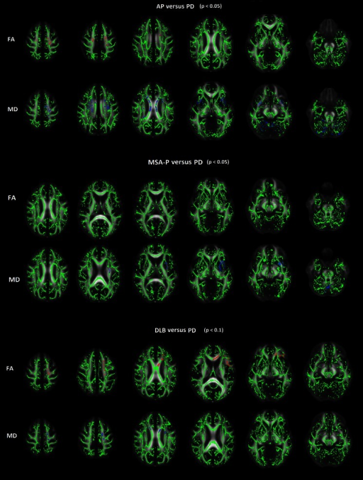 TBSS analyses of atypical parkinsonism with Parkinson's disease and atypical parkinsonism subgroups with Parkinson's disease. Upper row: TBSS comparison of AP (n = 19) with PD (n = 29). Brain regions with statistically significant lower FA and higher MD in AP in comparison to PD (p < 0.05). Middle row: TBSS comparison of MSA-P (n = 12) with PD (n = 29). MD of the left putamen and external capsule, and superior part of the cerebellar vermis proved to be statistically significant higher for MSA-P in comparison to PD (p < 0.05). A part of the left external capsule demonstrated significantly lower FA in MSA-P. Lower row: TBSS comparison of DLB (n = 3) with PD (n = 29). No statistically significant differences were demonstrated, while at a p value of <0.1 lower FA and higher MD in the left frontal lobe is seen for DLB in comparison PD. No differences were demonstrated in a TBSS comparison between PSP and PD. Red, lower values; blue, higher values
