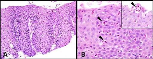 Histology images of oesophageal epithelial eosinophilia. (A) Squamous mucosa showing basal cell hyperplasia, elongation of papillae, and numerous eosinophils in the epithelium (haematoxylin and eosin ×100). (B) Eosinophils in squamous epithelium (arrowhead, >30/high powered field). Detail upper right corner: eosinophilic micro abscess (arrow head, H&E ×400).