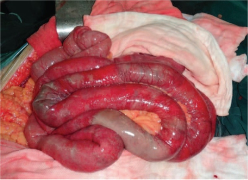 Intraoperative appearance of intestinal necrosis.