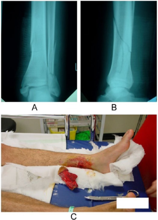 (A) Anteroposterior and (B) lateral views of a type B, according to the AO classification, distal tibial fracture. The fracture is (C) open, grade I, according to Gustilo.