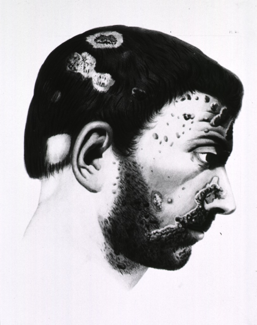 <p>Right profile of male head showing syphilitic ulcers and pustules.</p>