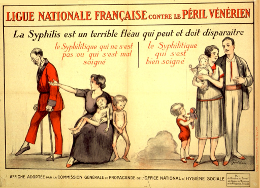 <p>Poster divided into two sections. The left side shows the drawing of a woman, seated on a chair, holding a toddler on her lap. A young child is standing beside her and both of the children have a skeletal look. The husband is on crutches and is being told to leave by the wife. This represents the man who has syphilis and doesn't get the proper treatment. The right side of the poster shows a couple, standing beside each other, and in good health. The woman is holding a toddler and a young child is standing beside her, both also in apparent good health. This represents the man who has syphilis and gets proper medical attention.</p>