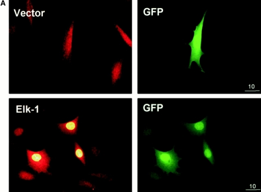 Adhesion to fibronectin and EGF collaborate to provide efficient phosphorylation of the Elk-1 transcription factor. NIH 3T3 cells were transfected with either pCMV5 (Vector) or pCMV5-FLAG-Elk-1. In A, 1 μg of green fluorescent protein (GFP) was included in the transfections to identify transfected cells. After 48 h, transfected cells were serum starved before being replated in DMEM/BSA on fibronectin-coated coverslips (A) or maintained in suspension (Sus) or replated on fibronectin (Fn)-coated dishes for a further 3 h (B). (A) Localization of Elk-1 was determined by immunofluorescence with an Elk-1 antibody and TRITC-conjugated anti–rabbit secondary antibody. The scale bar depicts a 10 micron distance. (B) After the 3-h incubation, cells were treated with 20 ng/ml EGF for 15 min as indicated. Ectopically expressed Elk-1 was immunoprecipitated (IP) from cell lysates from each condition with an M2 FLAG epitope antibody. Immunoprecipitates were analyzed by Western blotting (WB) with antibodies to determine phosphorylated and total Elk-1 levels.