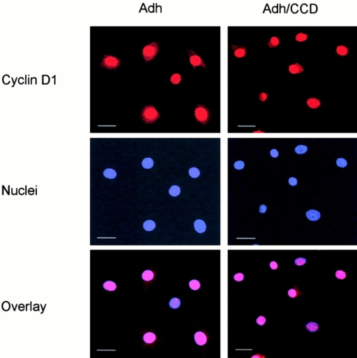 Targeting of cyclin D1 to the nucleus in not affected by disruption of the actin cytoskeleton. Tet-cyclin D1-3T3 cells were G0-synchronized and stimulated with 10% FCS in the absence of tetracycline in monolayer in the absence and presence of CCD. The cells were fixed 6 h after stimulation, stained with anti-cyclin D1 antibody and DAPI nuclear stain, and analyzed via confocal microscopy. An overlay of the cyclin D1 and DAPI images is shown. The scale bars show a 10 micron distance. Adh, adherent.