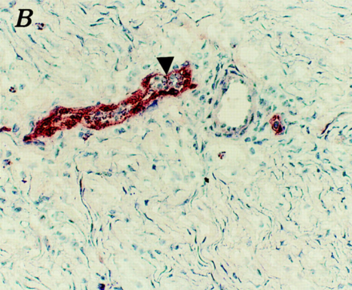 GR113 stains venules in a site of chronic inflammation. A  chronic inflammatory lesion was induced by potassium permanganate, as  described in Materials and Methods, which was characterized by an infiltration of mononuclear leukocytes with many of the inflammatory cells  being lymphocytes (data not shown). Frozen sections were stained with  GR113 by standard immunoperoxidase techniques. A shows a low power  (125× final magnification) field demonstrating many GR113 positive  vessels in the site of leukocyte infiltration (arrowheads). B shows a high  power field (250× final magnification) of the same tissue. The arrow head  points to a GR113 positive vessel containing leukocytes bound to its lumenal surface.