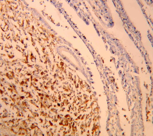 Neoplastic cells immunostained with anti-S-100 antibodies (× 400).