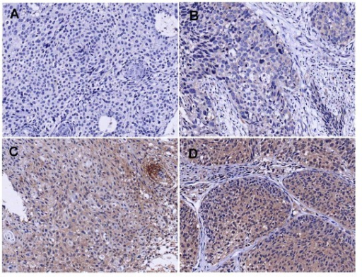 Representative examples of VEGF staining in bulky cervical carcinoma showing cases with no staining (A), weak staining (B), moderate staining (C) and strong staining (D) (×200).