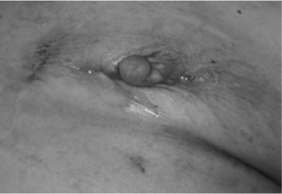 The left breast exhibits nipple retraction, erythema, a | Open-i