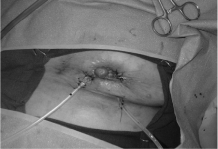 The breast is shown after wound VAC sponge removal and delayed primary closure over drains. Note the volume loss secondary to the MBD skin and breast necrosis.