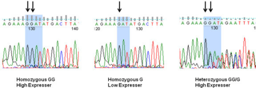 Sequencing of the -1607 MMP-1 promoter polymorphism, illustrating the homozygous and heterozygous genotypes. Insertion of an additional G creates the consensus sequence for the ETS binding site, GGA (indicated by blue shading).