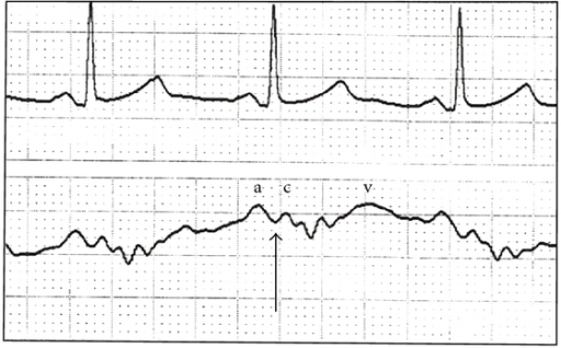 A typical CVP waveform (lower tracing) and accompanying electrocardiogram (upper). The a, c, and v waves are shown, along with the z point (arrow), indicating the appropriate time in the cardiac cycle for CVP measurement. All analyses need to occur at end expiration.