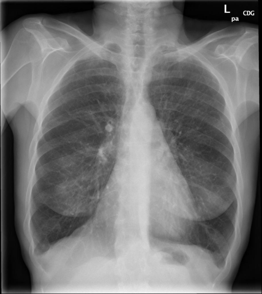 2 view ( PA and lateral) chest radiograph dated XXXX, XXXX