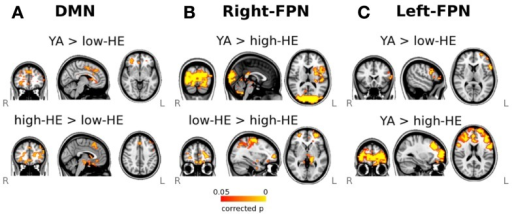 Results of the dual-regression analysis of resting-state fMRI. Maps show voxel-wise group-comparisons thresholded at a FWE corrected significance level of p < 0.05. (A) Group differences in the DMN, (B) Group differences in the right-FPN, and (C) group differences in the left-FPN.