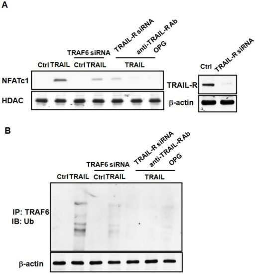 TRAIL-induced activation of NFATc1 in osteoclast differentiation is dependent on TRAF6.(A). RAW264.7 cells were treated with TRAIL, M-CSF (20 ng/ml) and RANKL (50 ng/ml) in the presence or absence of TRAF6 siRNA, TRAIL receptor (TRAIL-R) siRNA, anti-TRAIL-R antagonist Ab, or OPG as indicated in the figure. After stimulation, cells lysates of the nuclear fraction were prepared, and immunoblotted with anti-NFATc1 and anti-HDAC antibodies. The results are representative of three separate experiments. (B).TRAF6 is ubiquitinated after TRAIL stimulation. Ubiquitin transfected RAW 264.7 cells were treated with TRAIL in the presence or absence of TRAF6 siRNA, TRAIL-R siRNA, anti-TRAIL-R antagonist Ab, or OPG as indicated in the figure. The cell lyses were immunoprecipitated with anti-TRAF6 mAb. Bound proteins were subjected to SDS–PAGE and immunoblotted with anti-Ubiquitin mAb, and then the membrane was stripped and reprobed with anti-TRAF6 mAb. The results are representative of three separate experiments.