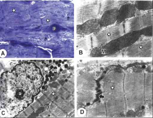 Electron micrographs from cardiac atria of control rats. A. A semithin section showing clarified intercalated discs (arrows), typical cross striations of muscle fibres (star), and many rows of mitochondria (double arrows). (B) blood capillary. B. The striation pattern (stars) with its typical alteration and dense mitochondria (M) rich in cristae (Bar = 200 nm). C. The striation pattern (stars) with its typical alteration and dense mitochondria (M) rich in cristae, euchromatic nucleus (N) with its nucleolus (n) and closely packed atrionatriuretic factor (ANF) granules (An) (Bar =1 µm). D. The striation pattern (stars) with its typical alteration and step-like intercalated disc (arrow) with adherent fascia (Bar = 500 nm). (x: 1000).