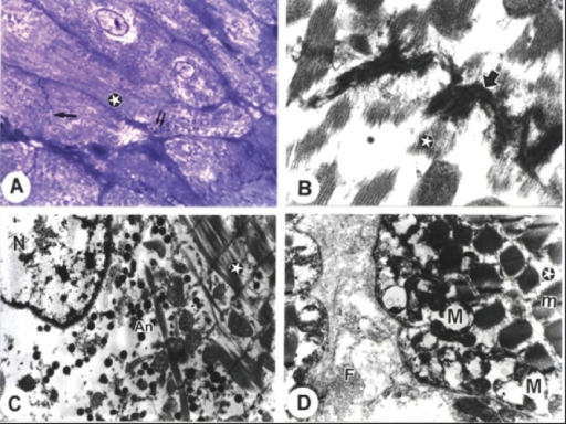 Electron micrographs from cardiac atria of amiodarone-treated rats. A. A semithin section showing abnormal pattern of striations (stars), disrupted intercalated discs (arrow) and abnormal mitochondrial arrangements (double arrows). B. Dissociation of myofibrils (stars) with irregularities and destruction of myofibrils and intercalated disc (arrow) (Bar = 200 nm). C. Dissociation of myofibrils (stars) with irregularities of the sarcomere and lesser concentration of ANF granules (An) with disrupted nuclear (N) chromatin contents (Bar = 1 µm). D. Swollen mitochondria (M) with loss of its cristae in some and loss of its pattern in others. Empty spaces in between myofibrils (m) and fibres (F) were noted in the intercellular space (Bar = 1 µm). (x: 1000).