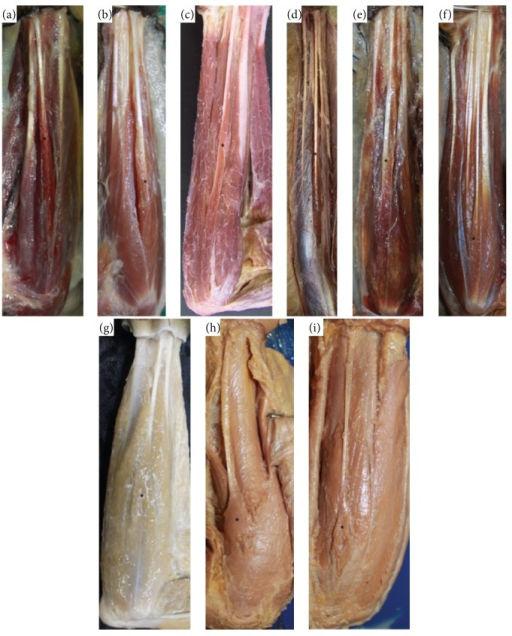 Photos of the forearms of (a) Propithecus sp. (0.45x, left); (b) Lemur catta (0.52x, left); (c) Sapajus libidinosus (0.34x, right); (d) Ateles sp. (0.1x, right); (e) Callithrix sp. (0.3x, right); (f) Aotus sp. (0.8x, right); (g) Macaca fuscata (0.34x, right); (h) Pongo sp. (0.79x, left); (i) Pan sp. (0.23x, left). From (a) to (f), muscles are pennate and from (g) to (i) are fusiform. ∗ indicates the palmaris longus.