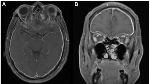 There is diffuse smooth enhancement of the pachymeninges (A), left greater than right, with apparent thickening (B). Globes are normal in their size, shape, and signal intensity on all pulse sequences. No evidence of intra or extraconal soft tissue mass. Bilateral enhancement of posterior intraconal optic nerve sheath with normal signal intensity of optic nerves.