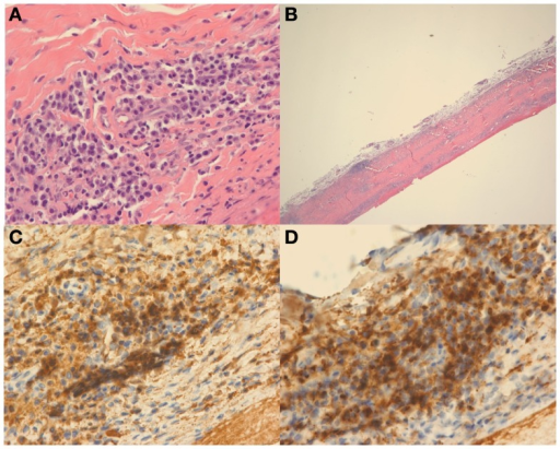Hematoxylin and eosin (H&E) stain at high power (A) and low power (B) demonstrate dural thickening with prominent lymphoplasmacytic infiltrate. On high power (A), the infiltrate is composed of mostly plasma cells. Immunohistochemical stain for IgG (C) and IgG4 (D) demonstrate that most of the plasma cells are positive for IgG and that the vast majority of the plasma cells are IgG4 positive.