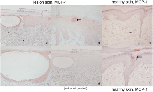MCP-1 expression in PPP lesion skin and healthy skin.In lesion skin, strong expression of MCP-1 was detected around the PPP vesicle in the epidermis (Figs. 6a, b). In addition, acrosyringium in the lesions skin also showed the protein expression (Fig. 6c), but not in healthy skin (Fig. 6e, f). The eccrine pore at the surface of skin showed weak positive staining locating (Fig. 6f, arrowhead). (Original magnifications: a, c, d, e: 40×, b, f: 100×).