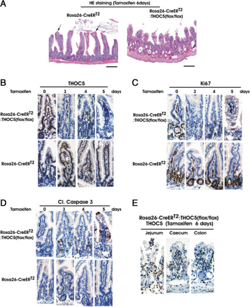 Depletion of the THOC5 gene causes severe pathological alteration in the gastrointestinal tract. Rosa26-CreERT2 and Rosa26-CreERT2:THOC5 (flox/flox) mice were treated with (+) or without (−) tamoxifen and jejunum (A-E), caecum (E), and colon (E) were fixed in formalin. Paraffin sections were stained by hematoxylin and eosin (HE) (A) or were supplied for immunohistochemical staining using THOC5 (B, E), Ki67 (C), and cleaved caspase 3 (Cl. Caspase 3) (D) specific antibodies as indicated. Bars represent 400 μm (HE) or 20 μm (immunohistochemical staining).