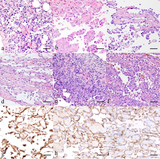 Cat. Metastatic lymphangiosarcoma. Plump spindle-shaped tumor cells formed irregularvascular channels. Dermis and subcutis of skin from the right hindlimb (a), ventralabdomen (b), omentum (c), mesentery (d), lung (e) and mediastinal lymph nodes (f). HE.The tumor cells were immunopositive for vimentin (g), vWF (h) and CD31 (i). DABchromogen, hematoxylin counterstain. Scale bar=100 µm.