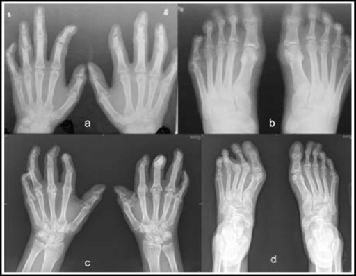 a and b: Radiographs obtained in 1992 showed arthritis in multiple small joints, with bone erosion, in both hands and feet.