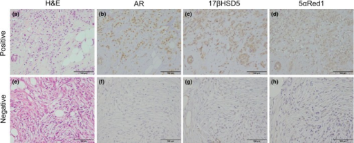 Representative illustrations of androgen receptor (AR), 17β-hydroxysteroid dehydrogenase type 5 (17βHSD5), and 5α-Reductase type 1 (5αRed1) immunohistochemistry in AR+/17βHSD5+/5αRed1+ (b–d) and AR−/17βHSD5−/5αRed1− (f–h) invasive lobular carcinoma cases. Hematoxylin–eosin staining (a,e). Androgen receptor was immunolocalized in the nuclei of carcinoma cells (b,f), and 17βHSD5 (c,g) and 5αRed1 (d,h) immunolocalized in the cytoplasm of carcinoma cells. Scale bar = 100 μm.