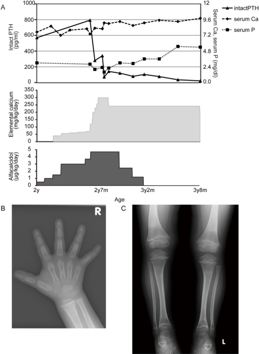 After Treatment with High-dose Oral Calcium Supplementation.(A) Treatment course and laboratory data are shown. (B) Bone roentgenogram at 3 years and 8 months of age, showing markedly improved signs of rickets.