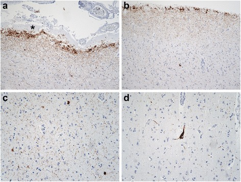 Cortical tauopathy in TTR meningovascular amyloidosis. Phospho-MAPT (AT8) immunostains were performed to determine if TTR meningovascular amyloidosis and dementia were associated with tauopathy. a, b Intense granular, threadlike and globular AT8 immunoreactivity was observed in the molecular layer of the entorhinal cortex (a; AT8; original magnification of 100×) and frontal neocortex (b; AT8; original magnification of 100×) subjacent to subpial amyloid deposits (asterisk). c AT8ir threads and neurons were observed in deep layers of the frontal neocortex (AT8; original magnification of 200×). d Rare neocortical neurofibrillary tangles were also seen (AT8; original magnification of 200×)