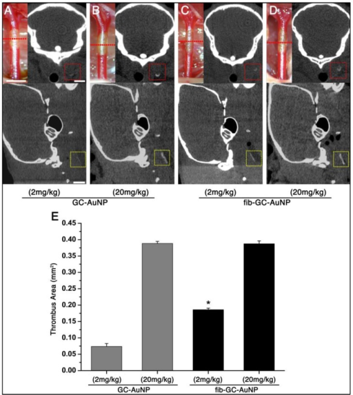 "Targeted fib-GC-AuNPs are superior to non-targeted GC-AuNPs in mCT imaging of in situ carotid thrombus. A-D, Representative mCT imaging of in situ carotid thrombosis. Thrombi were formed in C57Bl/6 mice by applying stripes of filter paper (1 × 1 mm2) soaked in 10% FeCl3 to the left distal carotid artery (photographs, upper row). Thirty minutes later, mCT thrombus images (upper row, coronal view; lower row, sagittal view) were acquired 5 minutes after intravenous injection of 200 μL GC-AuNPs (A and B) or fib-GC-AuNPs (C and D) of either a low (2 mg/kg; A-C) or high (20 mg/kg; B and D) concentration. At the low administered doses, fib-GC-AuNPs (D) outperforms GC-AuNPs (C), by more clearly marking the carotid thrombus. The ""larger"" thrombus in (C) vs. (A) reflects better clot visualization due to more avid binding of the targeted compound. At high administered doses, the areas of thrombus-related hyperdense lesions look similar between the animals injected with either GC-AuNPs (B) or fib-GC-AuNPs (D). E, Grouped quantification data. The above mCT imaging findings from the representative animals are corroborated by the quantification data for all 12 animals (n = 3 / group). At a higher dose (20 mg/kg), both fib-GC-AuNPs and non-targeted GC-AuNPs detected carotid thrombus with equal efficacy. At a lower dose (2 mg/kg) however, fib-GC-AuNPs and GC-AuNPs could mark approximately half and a quarter of thrombus area, respectively, as compared to the best thrombus marking result. Graphs show mean ± SEM. *P < 0.05 vs. GC-AuNP (both 2 mg/kg and 20 mg/kg) and fib-GC-AuNP (20 mg/kg) groups (ANOVA with post-hoc Mann-Whitney tests). Concentrations of nanoparticles are reported as 'mg Au / kg of animal'. Scale bars = 1 mm."