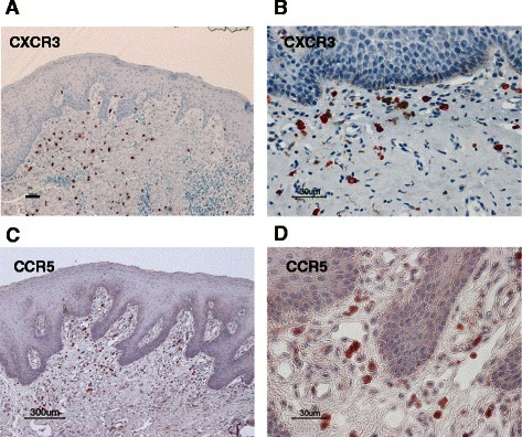 Immunohistochemical staining of oral leukoplakia with the anti-CXCR3 and anti-CCR5 antibodies. Immunoreactivity against anti-CXCR3 (a, b) and anti-CCR5 (c, d) antibodies for moderate grades of oral leukoplakia (original magnification: A, C: ×100; B, D: ×400). CXCR3+ and CCR5+ Th1 cells were mainly distributed in the subepithelial lesion. Scale bar = 100 μm (a), 300 μm (c), and 30 μm (b, d)