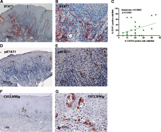 Immunohistochemical staining of oral leukoplakia with the anti-STAT1, anti-pSTAT1 and anti-CXCL9/Mig antibodies Immunoreactivity against anti-STAT1 (a, b), anti-tyrosine (Try701)-phosphorylated- STAT1 (pSTAT1) (d, e) and anti-CXCL9/Mig (f, g) antibodies for moderate grades of oral leukoplakia (original magnification: A, D, F: ×100; B, E, G: ×400). STAT1+ and CXCL9+ cells were mainly distributed in the subepithelial lesion. Scale bar = 300 μm (a, d), 100 μm (f), 50 μm (e, g) and 30 μm (b). Correlation between infiltrated CXCR3+ and STAT1+ cells in leukoplakia (c). Statistically significant differences were determined using Spearman's rank correlation coefficient analysis (p = 0.0465)