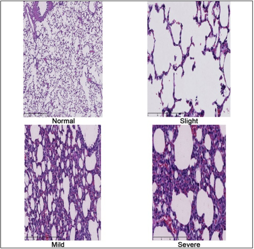 Photograph of histological changes of the lung parenchyma at regular, mild,moderate and intense degrees according Greca et al.[8] classification. (40Xoptical microscopy - hematoxylin-eosin staining).