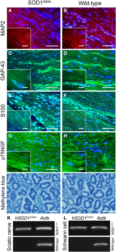 Histopathological analysis (A–J) and molecular evaluation of hSOD1G93A signal (B) in the sciatic nerve and Schwann cell samples of 60-day-old presymptomatic SOD1G93A and aged paired wild-type mice. Immunofluorescence staining of MAP2 (A,B; red), GAP-43 (C,D; green), S100 (E,F; green) and p75NGF (G,H; green) in the sciatic nerve of 60-day-old presymptomatic SOD1G93A mice (B,D,F,H) and their wild-type controls (A,C,E,G). MAP2 and GAP-43 are markers of neuronal fibers; S100 and p75NGF are markers of Schwann cells. Cell nuclei were stained with DAPI (blue). The insert boxes in the bottom left of images show a higher magnification of the cell profiles. Methylene blue staining of Schwann cell myelin sheets of sciatic nerve of 60-day-old presymptomatic SOD1G93A mice (J) and their wild-type controls (I) are also seen. Scale bars: 10 μm. Of note, the same staining pattern was observed for both genotypes (SOD1G93A and wild-type controls) for all cell markers and for the histological sections. Representative bands of PCR for specific gene markers of human SOD1G93A (hSOD1G93A) and actin b (Actb) in sciatic nerve (K) and Schwann cells enriched samples (L) obtained by flow cytometry sorting of SOD1G93A and wild-type control mice.