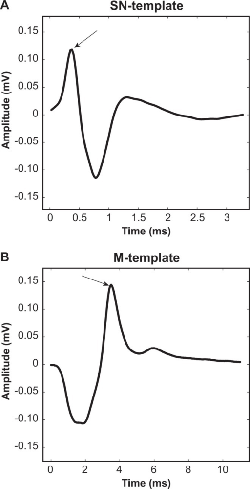 Generation of template signals used for waveform similarity analysis.Sural nerve (A) and tibial muscle EMG (B) template signals were generated from the intact side (left) of rats. The mean for each template was derived after individual responses were temporally aligned to the primary positive peak (arrows). See text for further details.