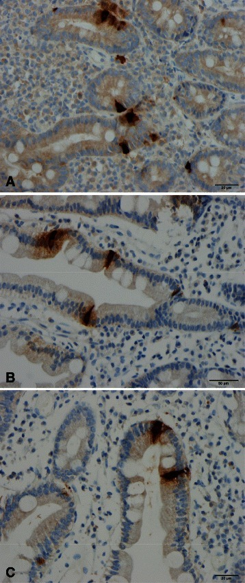 Secretin cells in the duodenum of (a) a healthy subject, (b) a patient with celiac disease (CD), and (c) a patient with irritable bowel syndrome (IBS)