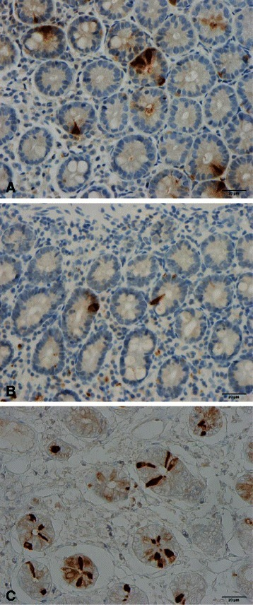 Duodenal cholecystokinin cells in (a) a healthy subject, a patient with CD (b), and (c) a patient with IBS