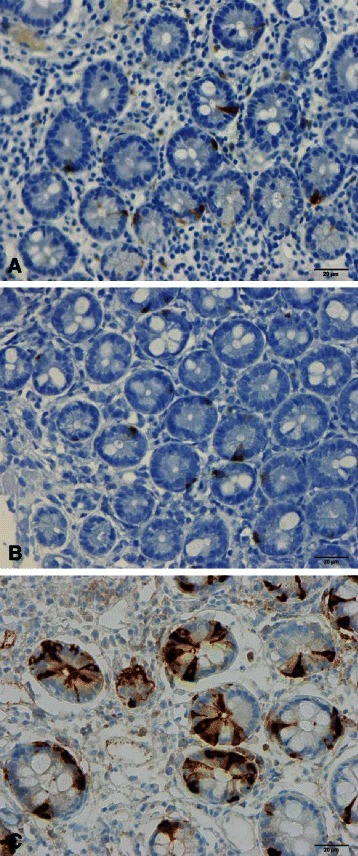 Gastric inhibitory polypeptide (GIP)-immunoreactive cells in (a) a healthy subject, (b) a patient with CD, and (c) a patient with IBS