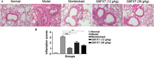 Effect of GBFXT on inflammatory cell infiltration in the lung tissue of mice. (A) Representative hematoxylin-eosin stained lung sections (magnification, ×200); and (B) inflammation scores in the various groups. Total lung inflammation was defined as the mean of the peribronchial and perivascular inflammation scores. Values represent the mean ± standard deviation of 10 mice. *P<0.05, **P<0.01 and ***P<0.001 vs. model group. GBFXT, Gu-Ben-Fang-Xiao-Tang.