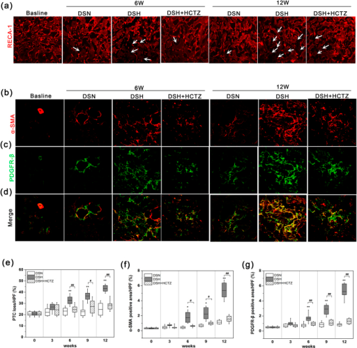 PTC loss and α-SMA accumulation in response to a high salt diet.(a) Representative images of RECA-labeled PTCs in the renal cortexes of each group; white arrows indicate the loss of PTCs (magnification, 200X). (b–d) Split panel confocal immunofluorescence images of myofibroblasts (red) and mesenchymal cells (green) during the progression of SSHT in DS rats. Composite images of α-SMA and PDGFR-β are shown at the bottom of the panel. Note that most interstitial cells in DS rats fed a high salt diet co-expressed α-SMA and PDGFR-β (magnification, 400X). (e) Graph of the change in the PTC index in the DSH, DSN, and DSH-HCTZ groups at each time point. (f,g) Graphs of the α-SMA- and PDGFR-β-positive areas in the long-term experiment in the DSN, DSH, and DSH + HCTZ groups. *p < 0.05, **p < 0.01 versus DSN group. #p < 0.05, ##p < 0.01: DSH + HCTZ group versus DSH group.