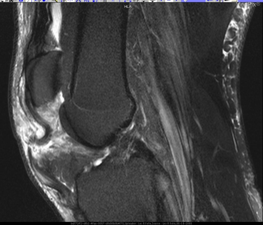 Figure 3 is a T2 sagittal of right knee showing the tendon retracted with associated increased signal representing tear and inflammation.