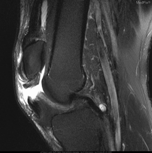 Figure 4 is a T2 sagittal of oppisite (left) knee showing the tendon retracted with associated  with wide gap of increased signal representing tear and inflammation.