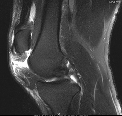 Figure 5 is a T2 sagittal of left knee showing the tendon retracted with associated increased signal representing tear and inflammation.