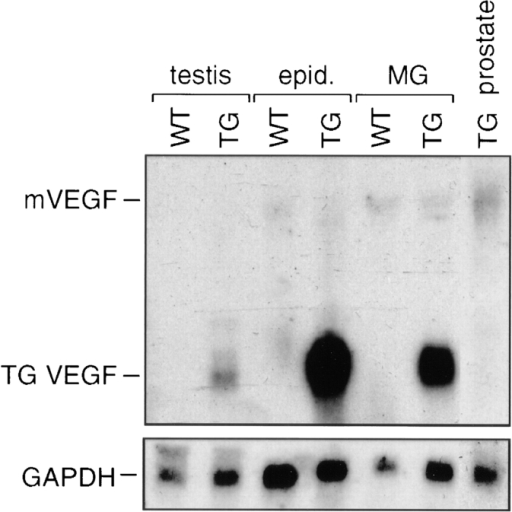 Expression of the VEGF transgene mRNA in the epididymis and testis. Total RNA was prepared from the testis, epididymis, and prostate of MMTV-VEGF transgenic mice and WT  control mice and then 10-μg samples were analyzed by Northern  blotting using the hVEGF-165 cDNA fragment as a probe (top).  Mammary gland (MG) RNA of MMTV-VEGF female mice was  used as a positive control. Signals corresponding to the VEGF  transgene mRNA (TG VEGF) and the endogenous mouse  VEGF mRNA are shown. The filter was stripped and reprobed  for GAPDH to check RNA loading (bottom).