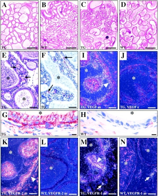 Histological comparison of epididymides of 6-mo-old MMTV-VEGF transgenic and WT control mice (A–H), and localization  of expression of the VEGF transgene and VEGFRs by in situ hybridization (I–N). The ductus epididymidis of TG mice is dilated and  devoid of spermatozoa in the caput region (A) and exhibits epithelial hyperplasia in the cauda epididymidis (C). Caput and cauda epididymidis of a WT control mouse are shown in B and D, respectively. Higher magnification of the hyperplastic epithelium in the cauda  epididymidis of the MMTV-VEGF mice (E) reveals the presence of interspersed capillaries (arrows). Immunohistochemical staining of  these capillaries for vWF is shown in F. The fibrinogen staining in the same area (G) indicates that the capillary permeability is increased in the TG mice when compared with the WT mice (H). Asterisks, lumen of the ductus epididymidis. The VEGF transgene is expressed in the ductal epithelium (arrowhead) as judged by in situ hybridization (I, antisense and J, sense hVEGF probe). In contrast, the  VEGFR-2 antisense probe localizes to the outer rim of the duct (arrowhead) and inside the hyperplastic nodules in cauda epididymidis  of MMTV-VEGF mice (K), whereas no hybridization signal is seen in the WT control mice (L). VEGFR-1 is expressed around the ductus epididymidis and inside the hyperplastic nodules (arrowhead) in TG mice (M) and it is also found in interstitial blood vessels (arrow). In WT mice (N) the mVEGFR-1 antisense probe recognizes only the interstitial blood vessels. Bars: (A–D) 500 μm; (E, F, I, J, and  K–N), 50 μm; (G and H), 10 μm.