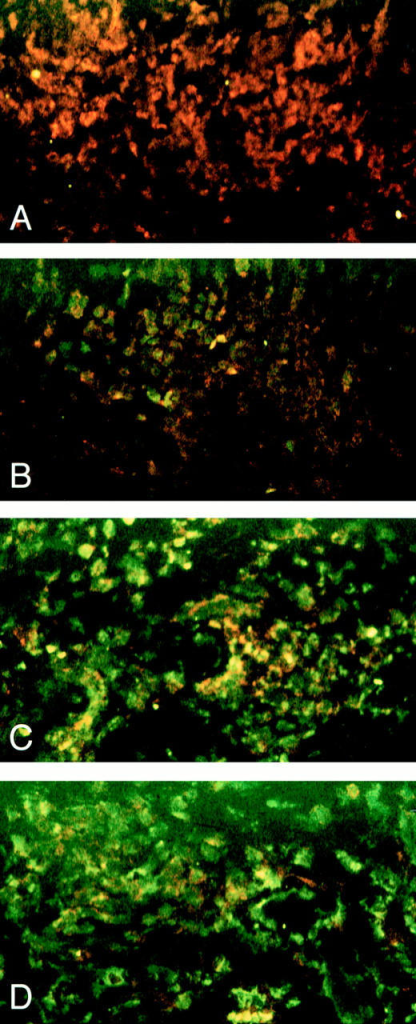 Qualitative analysis of UVA phototherapy induced apoptosis  in CD4+ cells present in lesional skin of a patient with atopic dermatitis.  Biopsy specimens were obtained from lesional skin (flexural creases of the  left elbow) of a patient with atopic dermatitis before (A) and after one (B),  two (C) and three (D) exposures to UVA radiation and analyzed for apoptotic  (green fluorescence) and CD4+ (red fluorescence) cells as described in Materials  and Methods. All photographs show dermis.