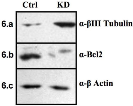 Cell differentiation and apoptosis. The levels of the neural marker βIII Tubulin and of the antiapoptotic protein Bcl2 were analyzed by western blot. The experiment was performed twice using two different cell extracts. a) The higher level of βIII Tubulin detected in knockdown (KD) vs control (Ctrl) indicates that Msi1 may play a role in inhibiting cell differentiation. In addition, the reduced levels of Bcl2 detected in the knockdown (b) suggested a potential role for Msi1 in preventing apoptosis. c) β-Actin was used as loading control.